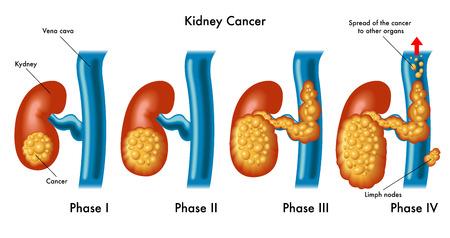 cancer du rein