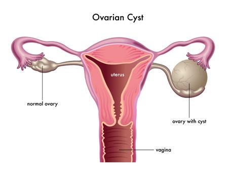 ovarian cyst Stock fotó - 40657966