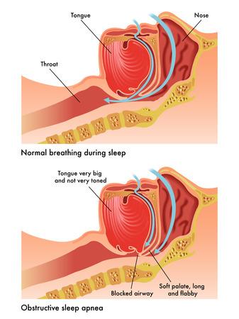 apnea: apnea ostruttiva del sonno Vettoriali