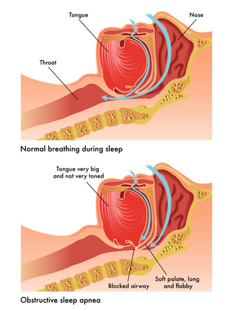 apnoe: obstruktive Schlafapnoe Illustration
