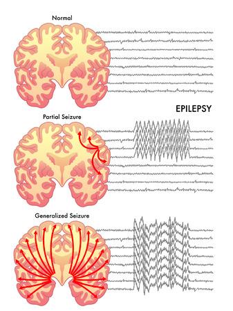 epilepsy Stock Illustratie
