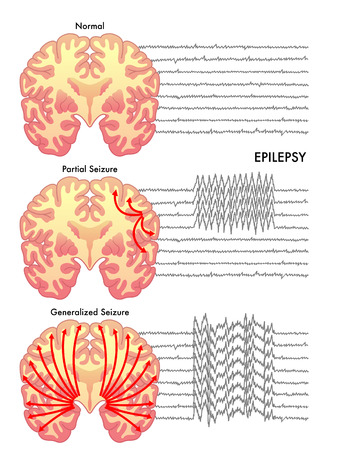 shocks: epilepsy Illustration
