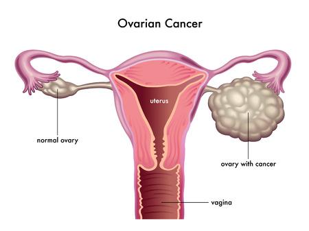 rak: rak jajnika Ilustracja