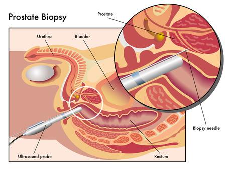 biopsia: Biopsia de próstata