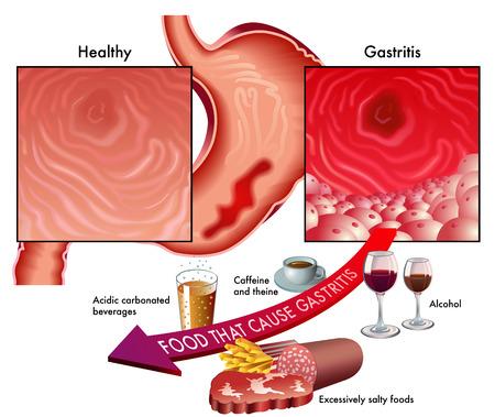 heartburn: gastritis