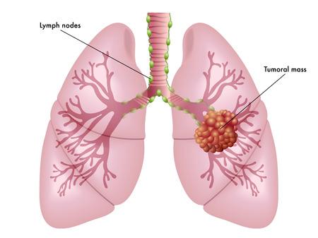 Il cancro ai polmoni Archivio Fotografico - 42499261