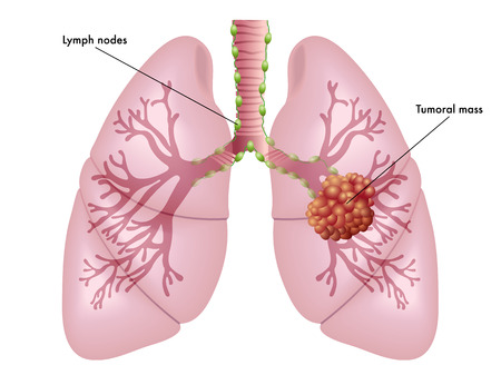 bronchioles: lung cancer