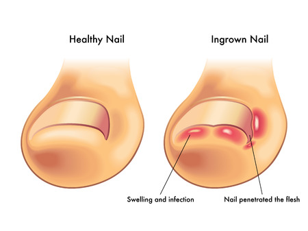 microbial: ingrown nail