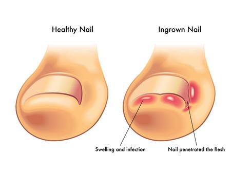 ingrown nail Stock Vector - 42858228