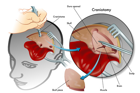 surgical removal: craniotomy