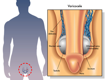 testicle: varicocele