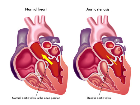 aortic valve: aortic stenosis Illustration