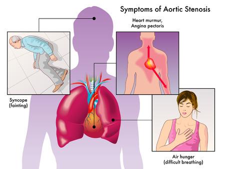 angina: síntomas de la estenosis aórtica Vectores