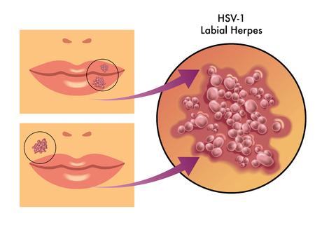 Herpes labiale Archivio Fotografico - 44554877