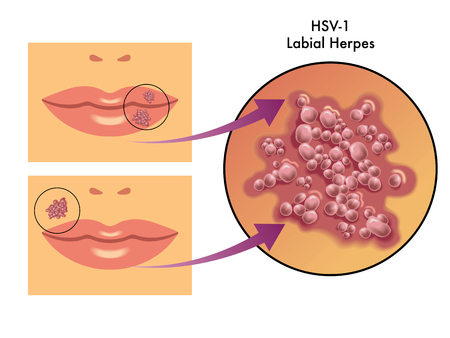 kissing lips: labial herpes