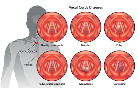 polyps: vocal cord diseases Illustration