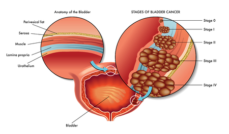 orifice: bad bladder cancer
