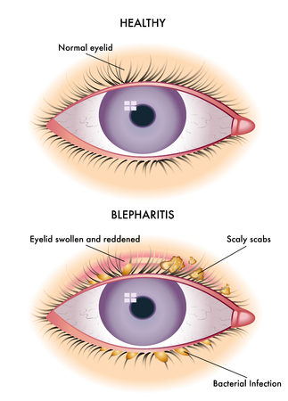 altered: blepharitis
