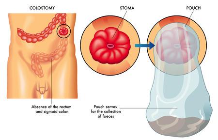 stoma: colostomia
