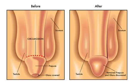 uncovering: circumcision