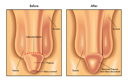 circumcision