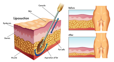 liposuction Illustration