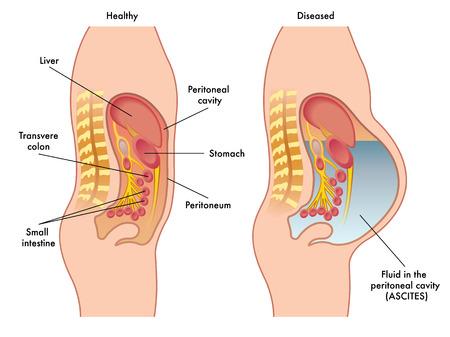 heart failure: ascites Illustration