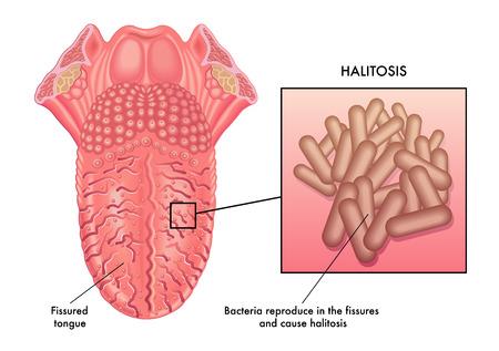 bad breath: halitosis Illustration