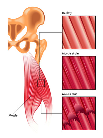 muscle strain and tear 版權商用圖片 - 49156227