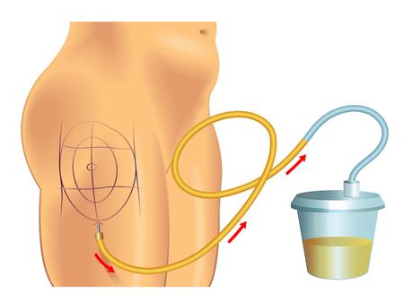 liposuction Zdjęcie Seryjne - 49914323