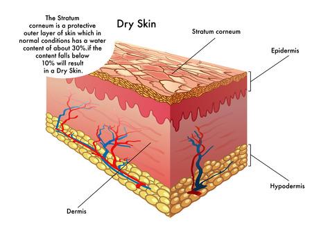dry skin 일러스트