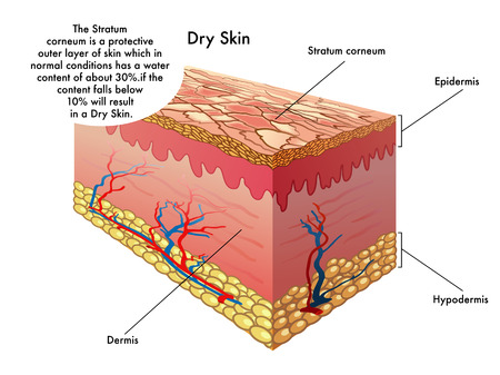 greyish: dry skin Illustration