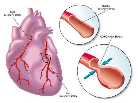 tightening: coronary artery spasm
