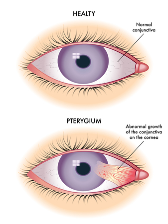 membranes: pterygium