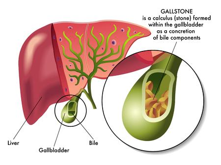 cirrhosis: gallstones