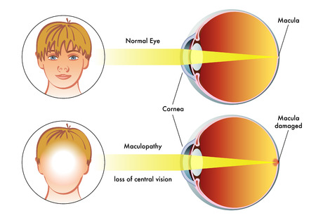 vision loss: maculopathy