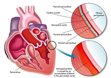 infarction: hemopericardium Illustration