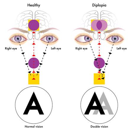 sistema nervioso central: diplopía