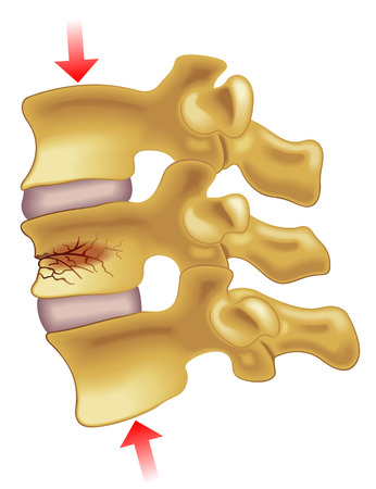 vertebral compression fracture Illustration