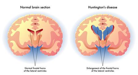 cognicion: enfermedad de Huntington