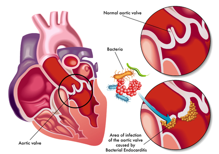 streptococcus: bacterial endocarditis Illustration