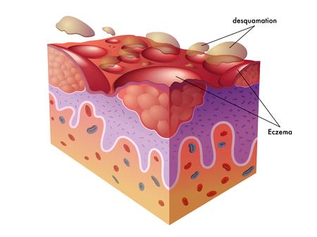 eczema Stock Illustratie