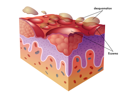 redness: eczema Illustration