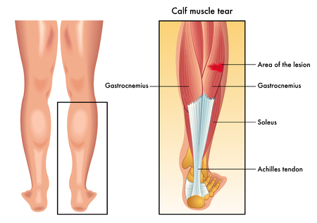 sudden: calf muscle tear