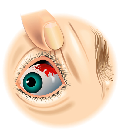 subconjunctival hemorrhage Illustration
