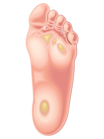 friction: foot calluses