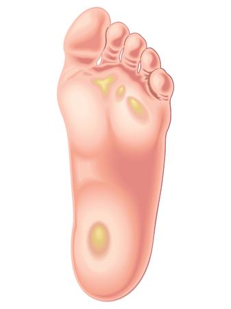foot calluses