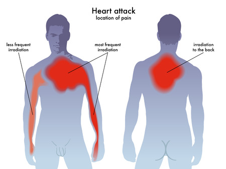dyspnea: heart attack pain location