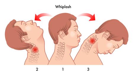urazu kręgów szyjnych