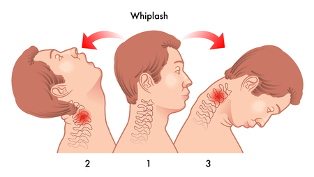 sudden: whiplash injury